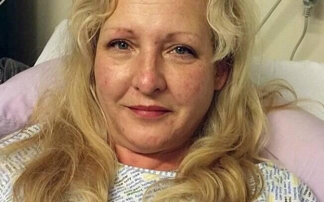 Cirurgia íntima prejudicou a vida sexual da mulher que chegou a se separar do marido, assim como caso do ex-namorado