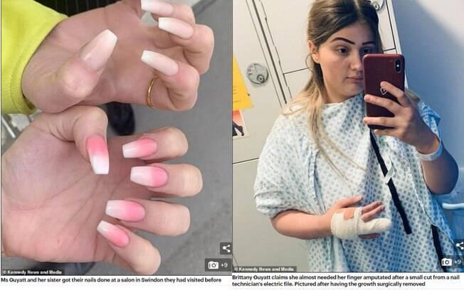 Um corte no dedo de Brittany Guyatt após aplicação de unhas de acrílico se tornou um nódulo infeccionado