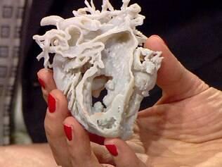 Coração impresso em 3D salva menina