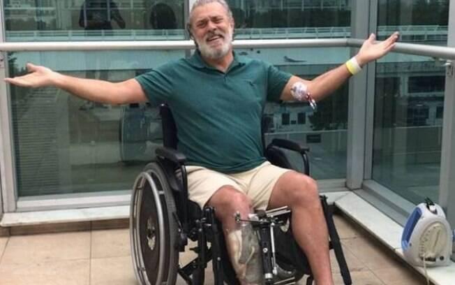 Ator Raymundo de Souza fala sobre a luta para não perder a perna após acidente de moto