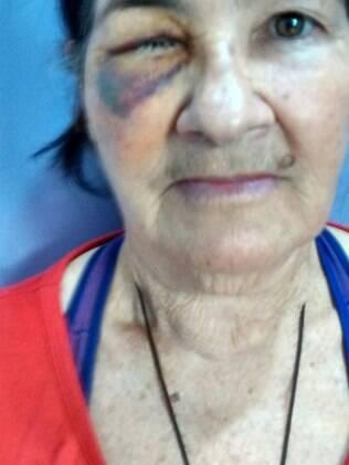 Maria da Conceição ainda se recupera da retirada do olho. Ela saiu de Montes Claros (MG) para fazer a cirurgia em São Paulo