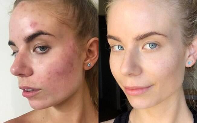 Por muitos anos, Nicola sofreu com acne cística até decidir procurar por tratamentos além dos medicamentos