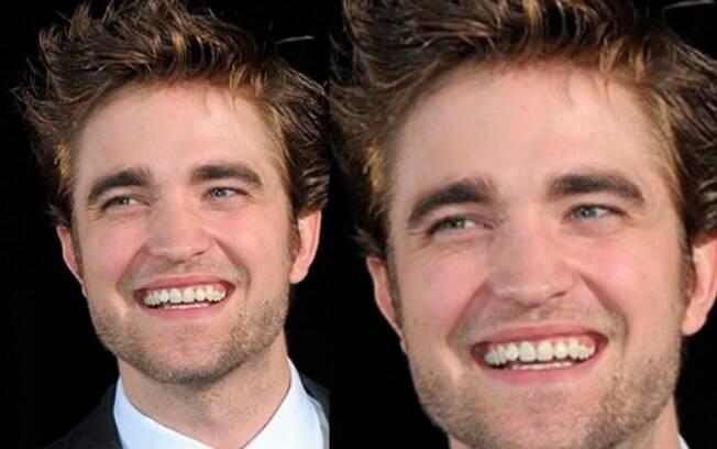 Robert Pattinson mostra um sorriso natural e não se preocupa em deixá-los um pouco tortos