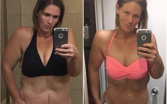 Em dezembro de 2016, Michele mostrou a mudança em seu corpo após a cirurgia para a retirada de pele em excesso
