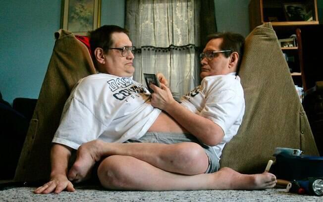 Durante 68 anos, os gêmeos viveram cara a cara, unidos do esterno à virilha com apenas um conjunto de órgãos digestivos inferiores