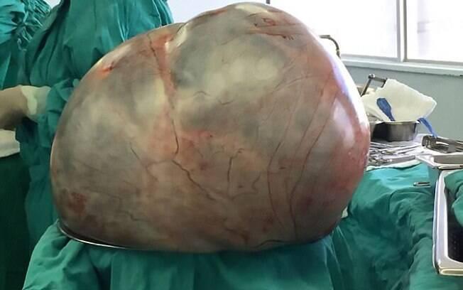 Tumor tinha mais de 30 quilos, de acordo com a equipe médica que retirou a massa