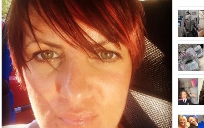 Anthea conta como o vício em bronzeamento causou um câncer de pele