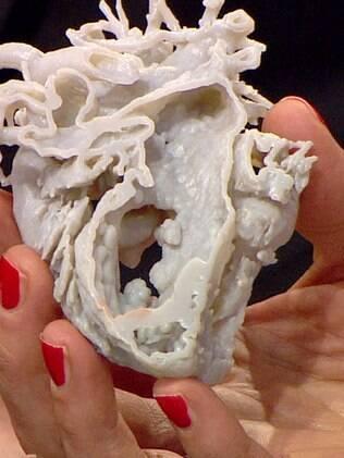 Coração impresso em 3D ajudou médicos na hora da cirurgia de Mina