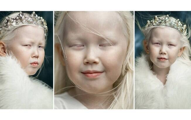 A garotinha albina de oito anos fez um ensaio e recebeu uma enxurrada de propostas para se tornar modelo