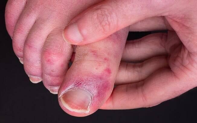 'Dedos de covid': o raro sintoma que atinge mãos e pés