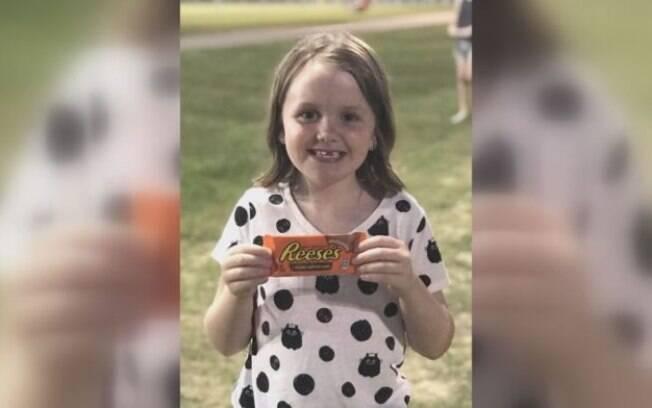 A pequena Reese recebeu esse nome devido ao chocolate favorito da sua mãe, a norte-americana Renee Cupp