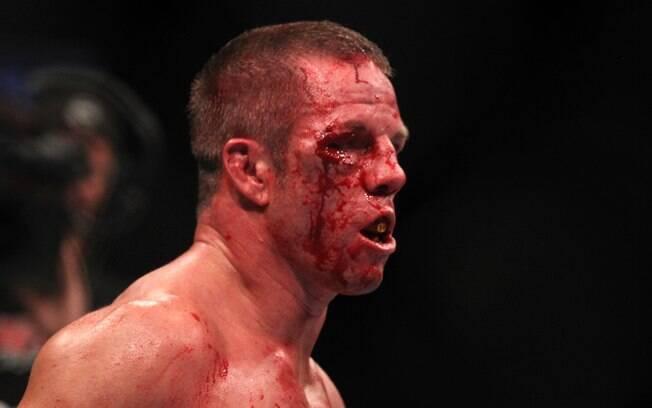 Marcus Davis - Lutadores do UFC ficaram  desfigurados após batalhas dentro do octógono