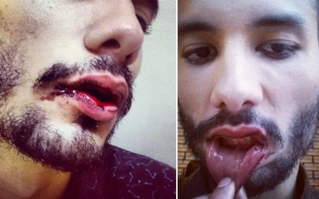 Os machucados de Rafael Rodrigues. Além do ataque homofóbico o estudante sofreu negligencia policial