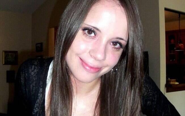Após parar com o uso dos cremes  de esteroides, Nina Ajdin percebeu uma melhora significativa na pele