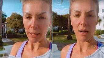 Ana Hickmann diz que estão usando foto dela para cometerem golpes