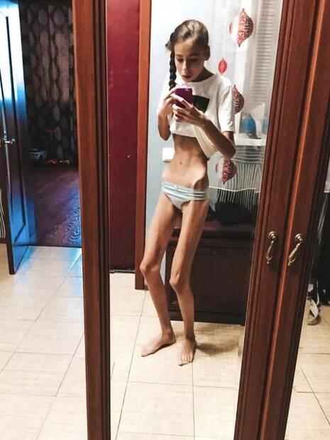 Ao deixarem de se alimentar, elas desenvolveram anorexia e passaram a pesar 31 e 38 quilos cada