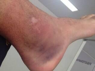Tratamento para o inchaço no tornozelo esquerdo de Guilherme começou nesta segunda-feira