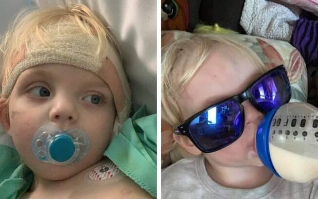 A mãe resolveu fazer um alerta para ajudar outros pais após o menino perder a audição de um dos ouvidos