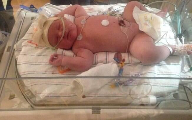 Harper Buckley é um bebê grande de 6,8 kg que quebrou um recorde do estado de Nova York nos Estados Unidos