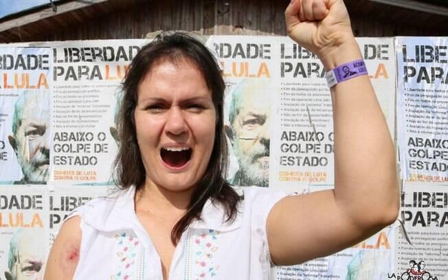 Advogada gaúcha, Marcia Koakoski foi acertada no ombro por estilhaços de um dos tiros disparados contra acampamento do PT em Curitiba