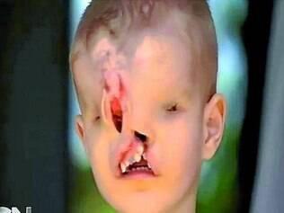 Yahya El Jabaly precisa sair coberto para não sofrer preconceito das outras crianças