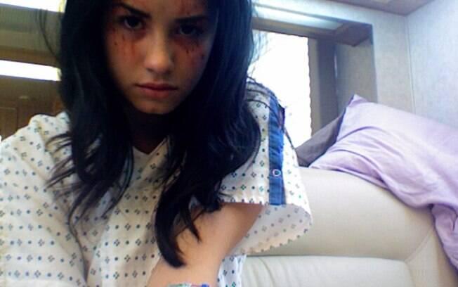 Demi Lovato gravando sua participação na série médica