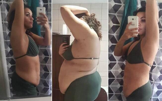 Alicia sofre com a síndrome do ovário policístico, e o emagrecimento foi necessário para aumentar chances de engravidar