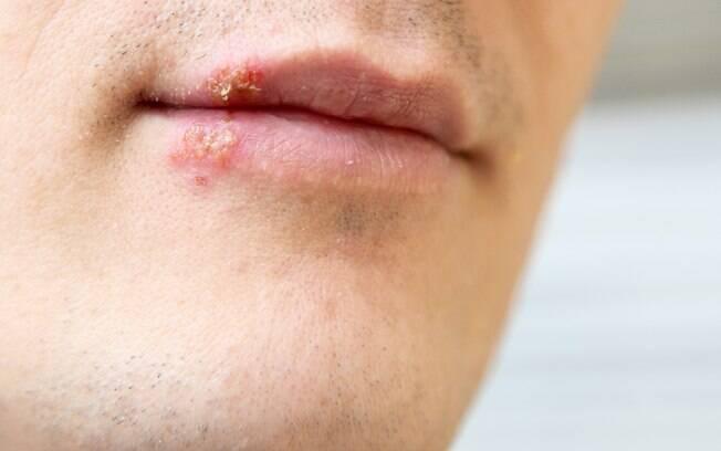 Bolhas da herpes não devem ser estouradas, e paciente deve evitar beijar ou entrar em contato próximo com outras pessoas