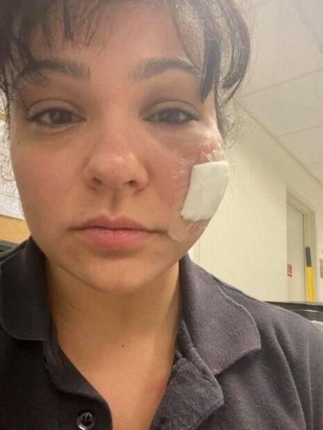 paramédica com curativo na bochecha e rosto inchado