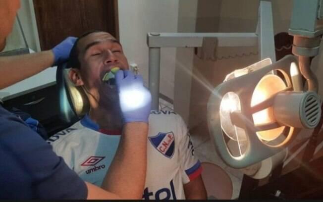 Federico González, torcedor do Nacional-URU, recebeu prótese dentária de consultório odontológico após viralizar na internet