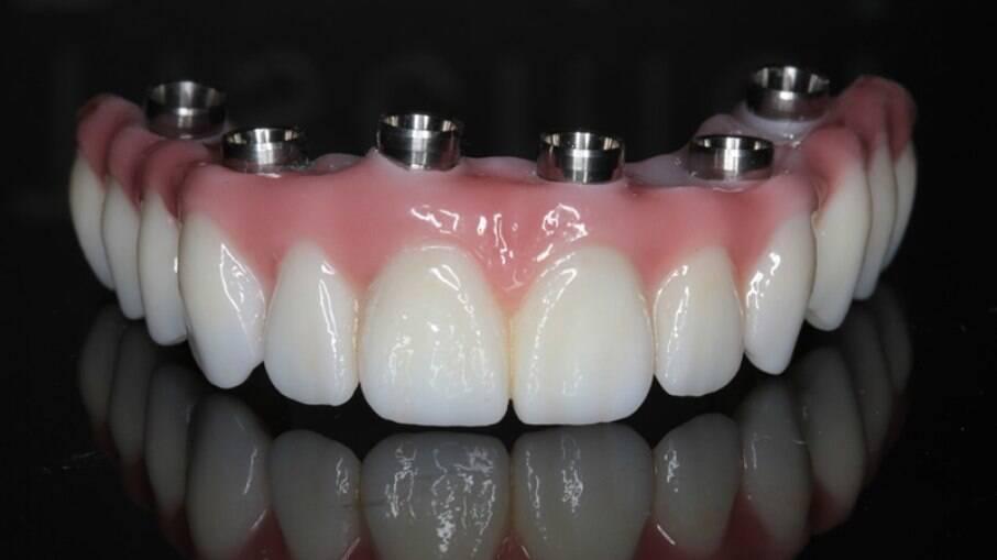Protocolo dental tem que tirar para limpar?