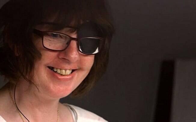Ela foi uma das primeiras pacientes a ter um chip implantado na retina e recuperar parte da visão