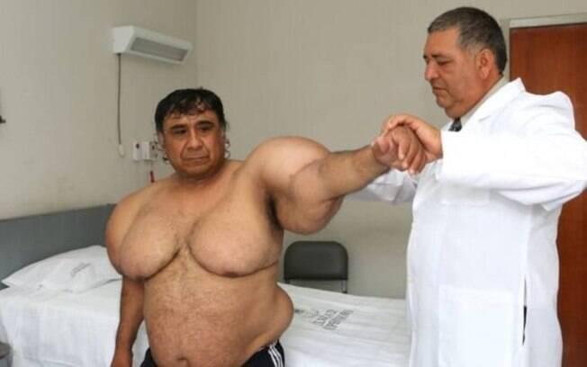 Recebendo tratamento gratuito, Alejandro Ramos pode ter um tumor no tecido adiposo, mas nada foi confirmado