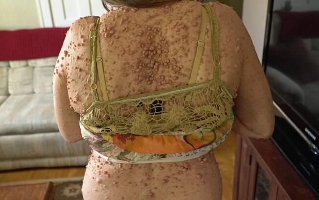 Condição atrapalha sua vida desde a adolescência; Além da aparência, Libby sofre de dores causadas pelos tumores