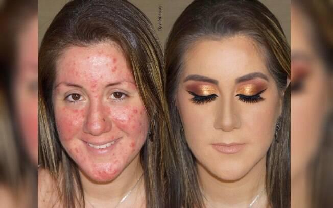 Espinhas foram totalmente cobertas com base, que deve ser própria para a pele com acne, assim como toda maquiagem