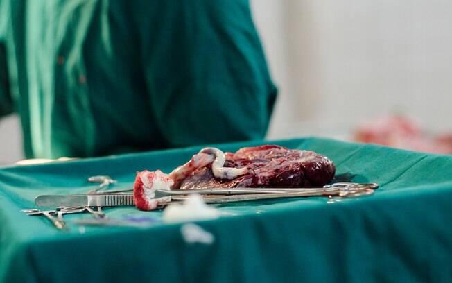 A placenta é rica em nutrientes, por isso, algumas mulheres adotaram a prática de comer placenta após o parto