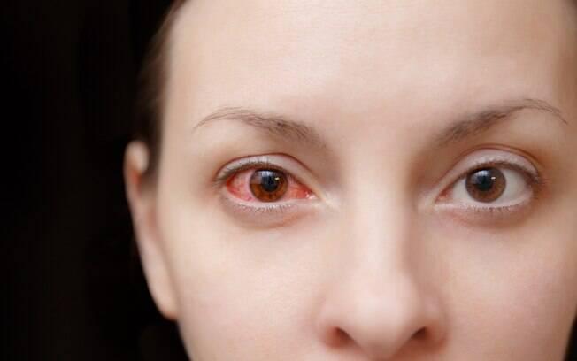 Olhos com ceratite