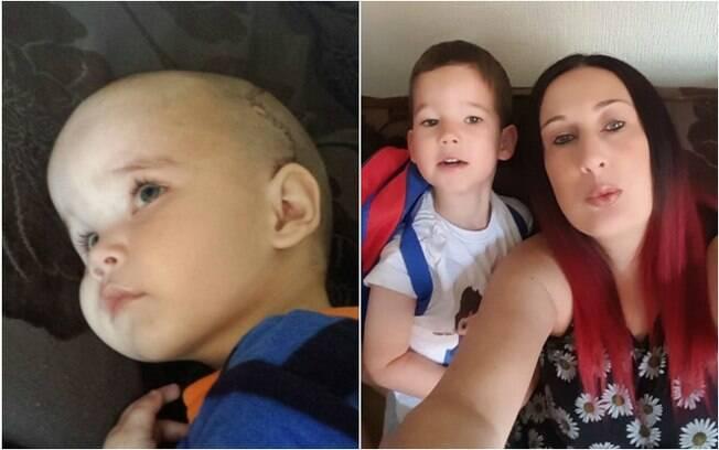 Riley Maddox precisou passar por uma  cirurgia no crânio aos 18 meses e só teve as placas só se fundiram aos 4 anos
