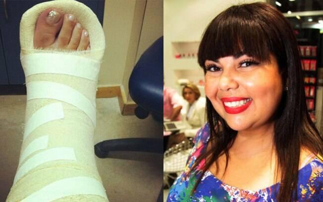 Fabiana Karla: pé quebrado e afastamento das gravações de 'Gabriela'