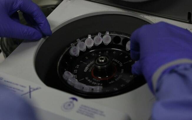 Falta de testes nas cidades pequenas contribui para falta de dimensão da pandemia