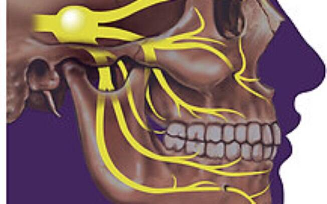 Condição rara afeta o nervo trigêmeo, responsável por transmitir as sensações do rosto, provocando uma dor insuportável