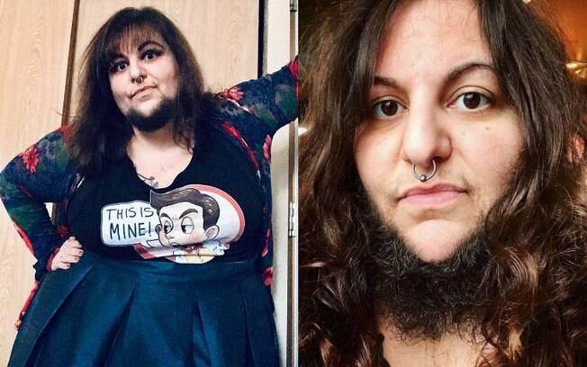 Mulher fala sobre aceitação da barba e traz mais detalhes do relacionamento. Antes, ela estava se sentindo para baixo