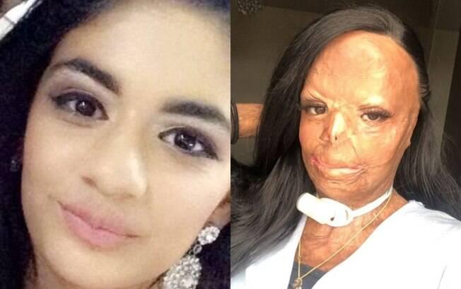 Aleema tinha 12 anos quando queimou 55% do seu corpo