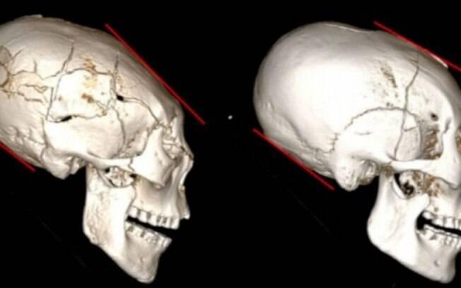 Apesar de estudos, cientistas ainda desconhecem motivação para a prática da modificação intencional craniana
