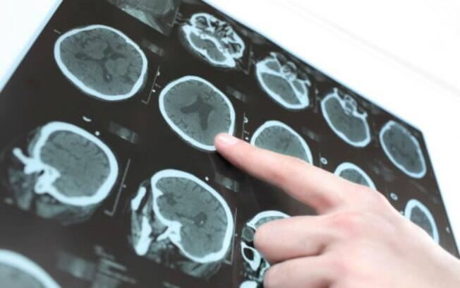 A epilepsia é uma manifestação neurológica que causa alterações cerebrais no portador da doença