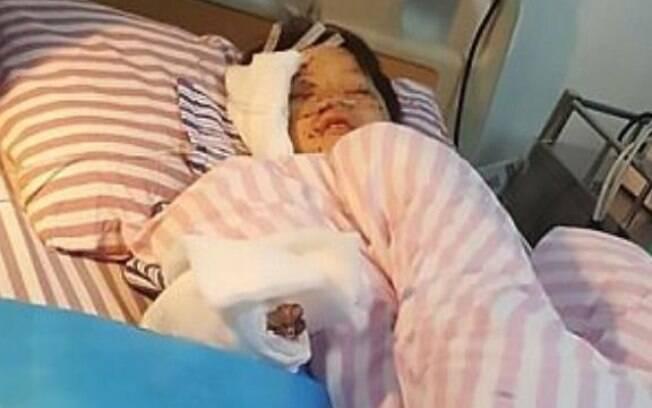 Após explosão de celular, Meng Jisu passou por uma cirurgia de cinco horas e segue se recuperando no hospital