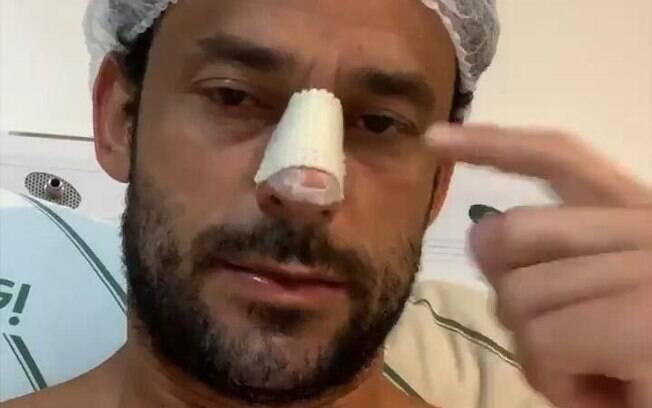 Nem machucado o atacante Fred deixou de fazer seus vídeos no Instagram