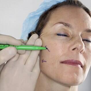 O lifting facial é indicado para diminuir rugas e flacidez, mas não altera a aparência do rosto