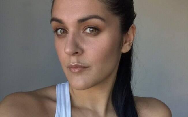 Tia Duffy afirma que participar da campanha e mostrar as cicatrizes de acne mudou a perspectiva sobre a própria pele