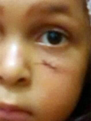 Mordida por cachorro, Aryane encontrou vacina após dois dias de busca